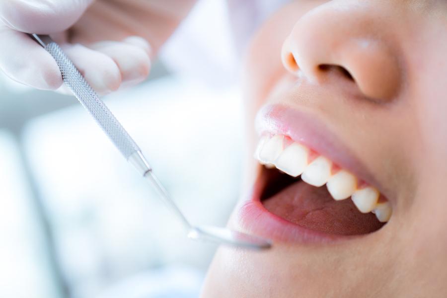 בדיקת שיניים תקופתית