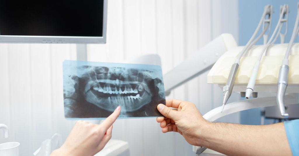 טראומה ונזק עצבי בשיניים